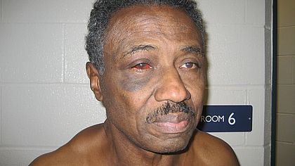 Herman Bell's facial injuries